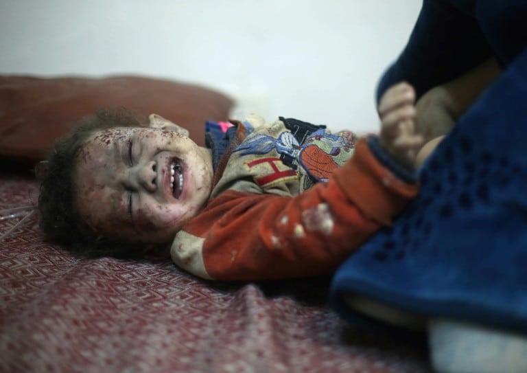 Un bébé syrien atteint d'être traité après avoir été blessé lors des frappes du régime à Arbine dans la Ghouta orientale près de Damas, le 8 février 2018