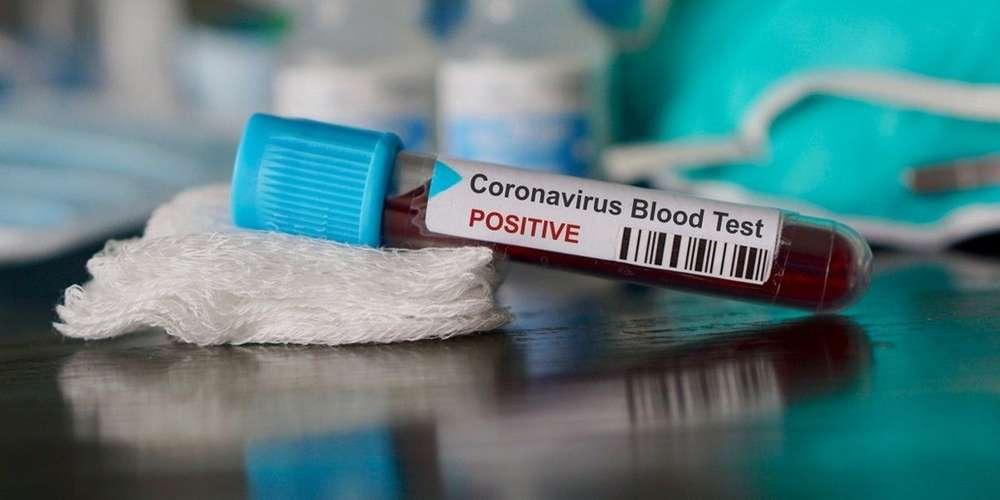 © DR | Coronavirus